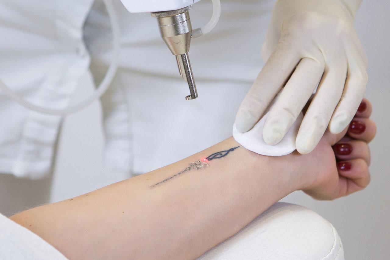 Remoção de tatuagem à laser