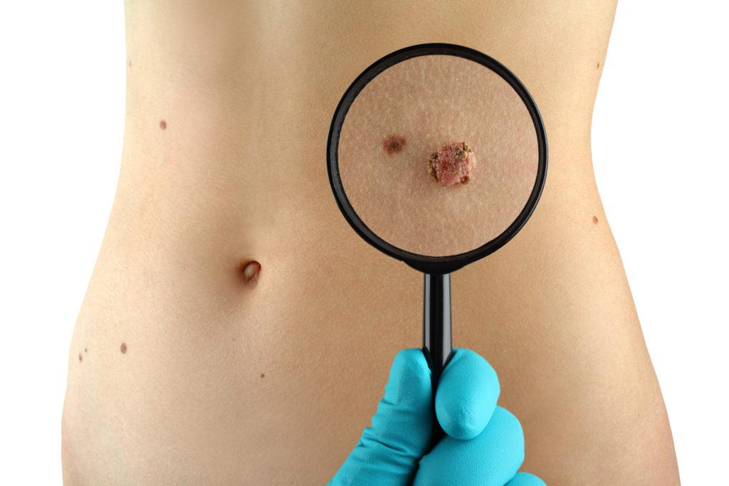 Retirada de tumores na pele