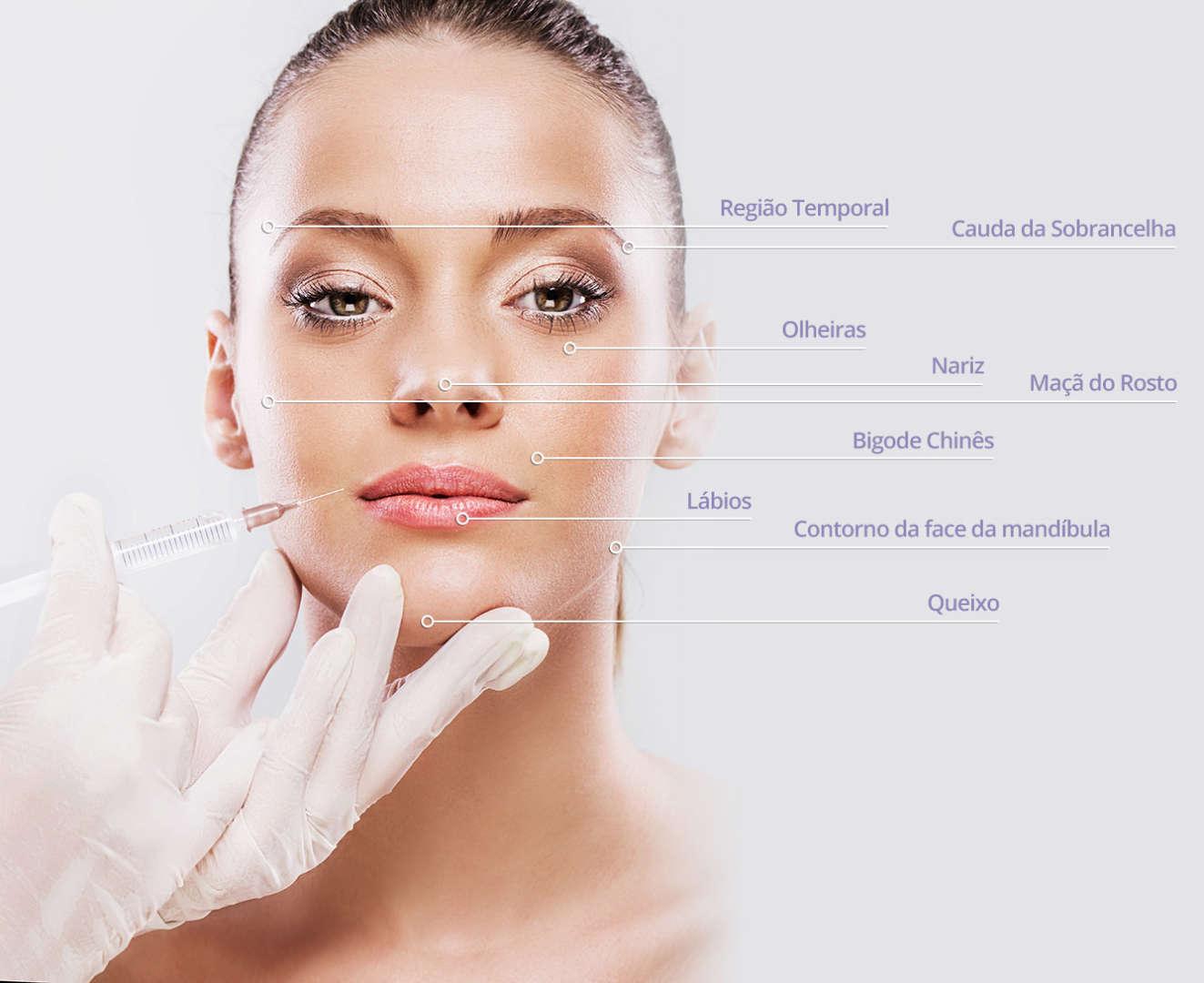 Harmonização facial no preenchimento com ácido hialurônico