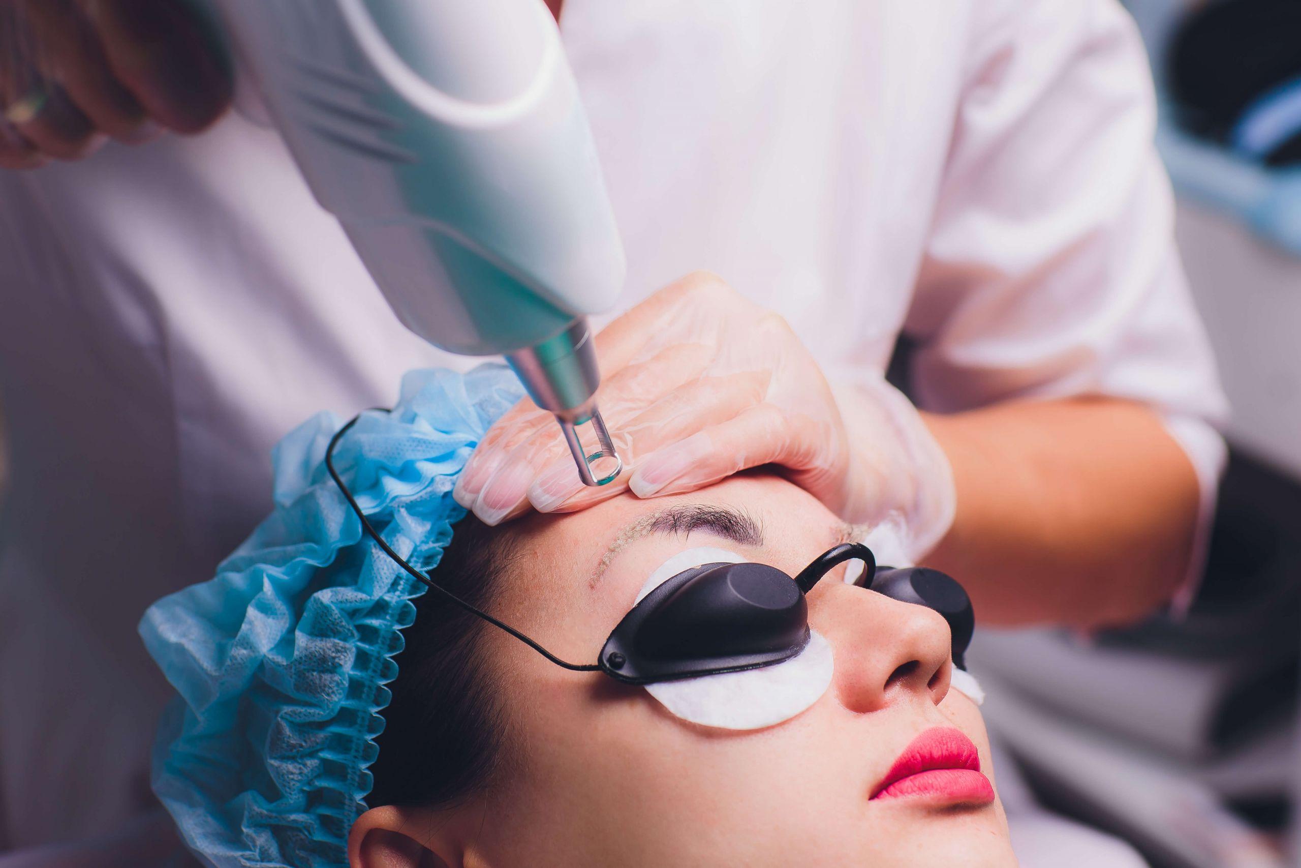 Laser para remoção de micropigmentação de sobrancelhas