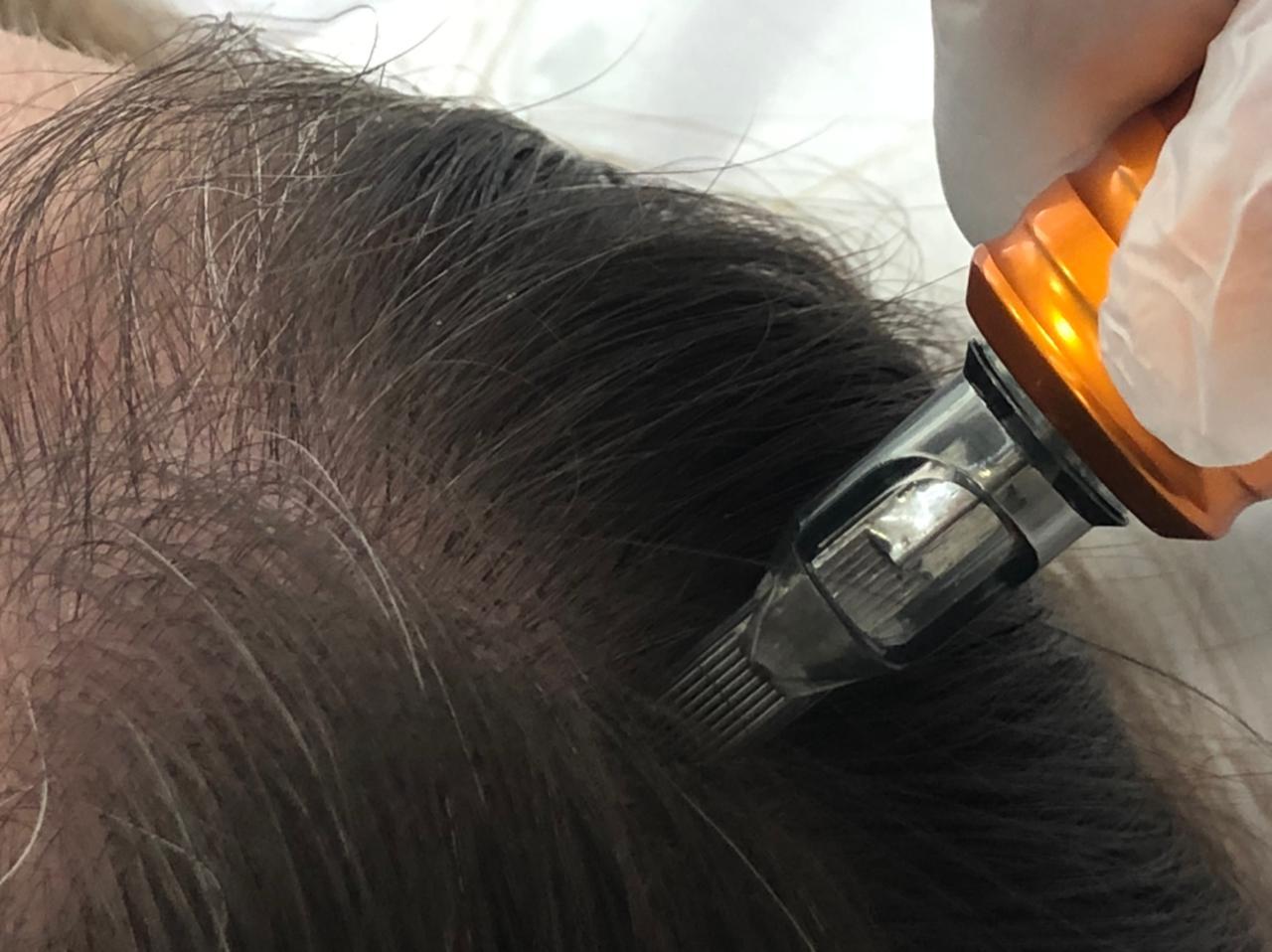 Microinfusão de Medicamentos na Pele (MMP®) – Capilar